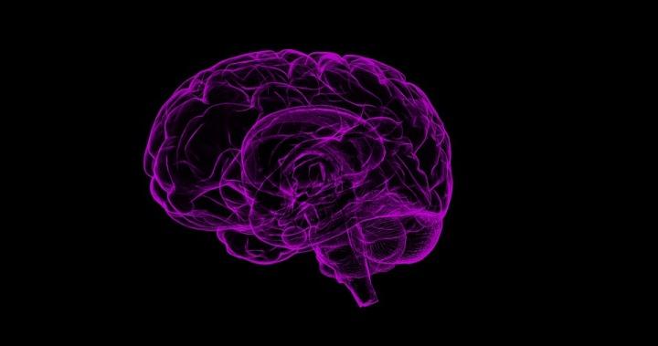brain-1787622_960_720